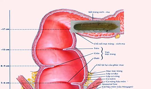 Quả dưa leo có bọc bao cao su bên ngoài lọt vào tận kết tràng xích ma của bệnh nhân.