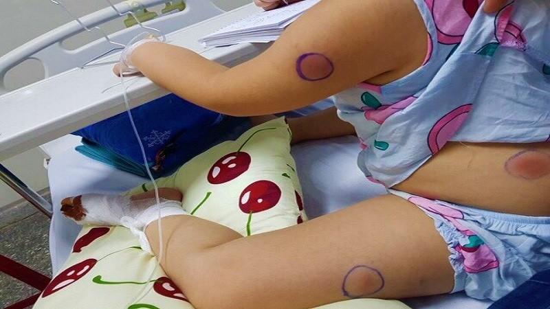 """Bé gái 6 tuổi nhiễm """"vi khuẩn ăn thịt người"""" vì bị gà mổ vào chân"""