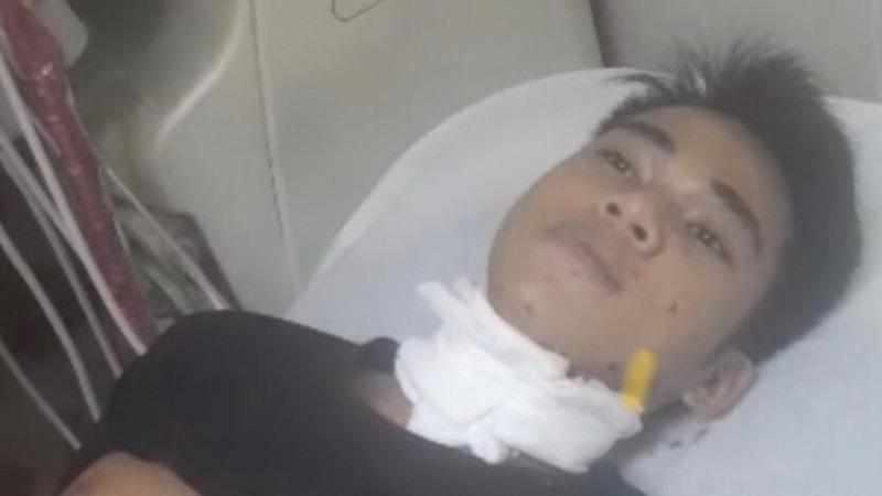 Nghi can Nguyễn Văn Bắc đang được điều trị tại bệnh viện