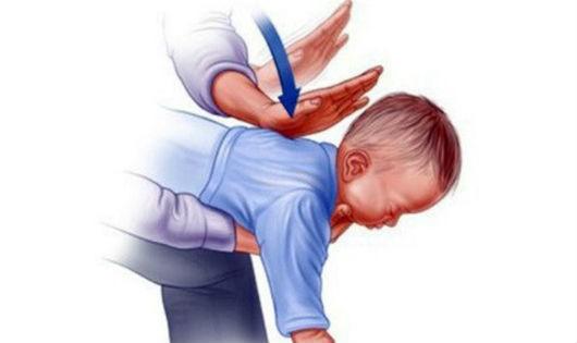 Bác sĩ chỉ cách xử trí khi trẻ hóc hạt nhãn