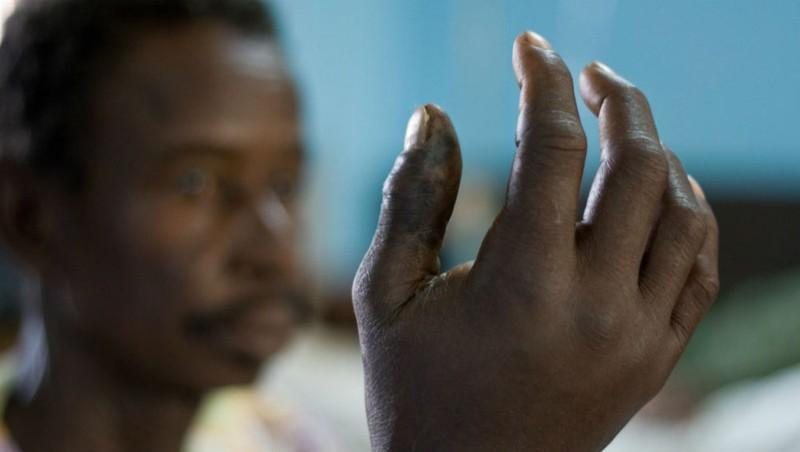 Nỗi sợ rắn độc ở châu Phi