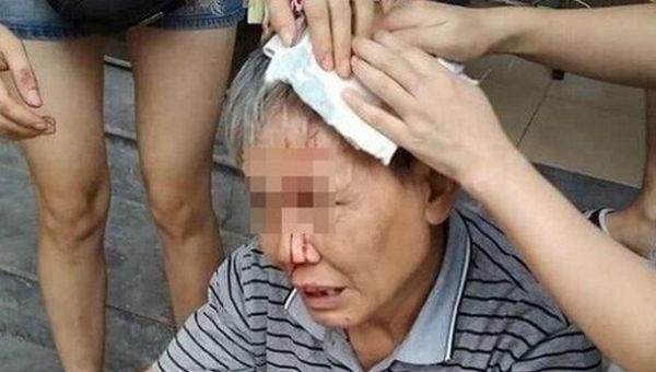 Hình ảnh cụ ông với khuôn mặt chảy nhiều máu, đau đớn khi bị ổ khóa của ai đó rơi từ trên cao tòa chung cư.