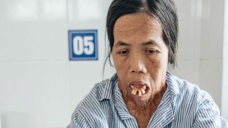 Đã gần 50 năm cô Sáu phải sống với khuôn mặt biến dạng vì tai nạn năm 6 tuổi.(Ảnh: Kênh 14).