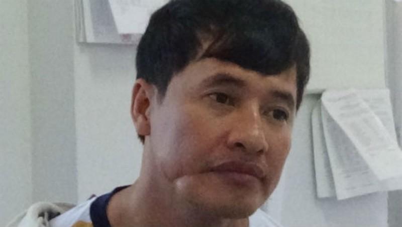 Bị can Nguyễn Phi Hùng