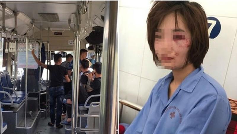 Truy nã hai đối tượng hành hung khiến nữ phụ xe buýt nhập viện