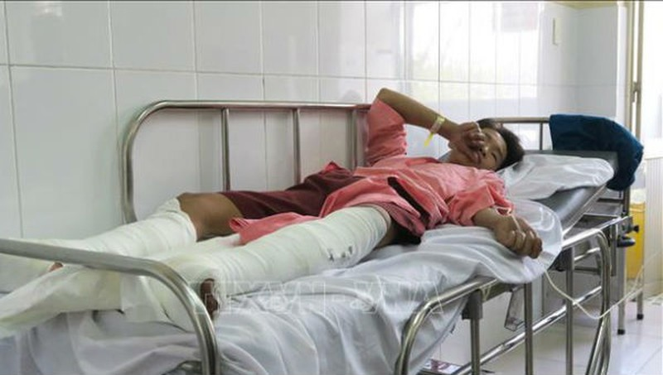 Nạn nhân nhỏ tuổi nhất bị bỏng nặng hai chân.