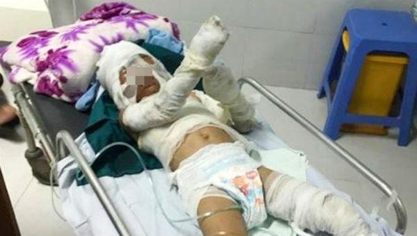 Chưa thể khẳng định thời gian hồi phục của bé trai 6 tuổi bị dì tẩm xăng đốt