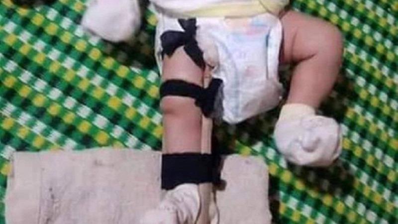 Bé 2 tháng tuổi nghi bị cha ruột đánh gãy chân.