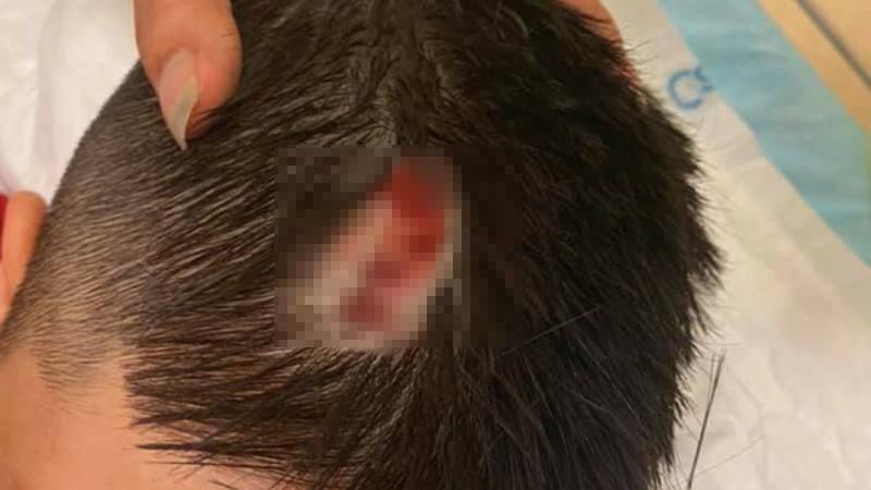 Xôn xao hình ảnh bé trai chảy máu đầu do chổi rơi từ tầng cao chung cư