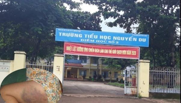 Trường tiểu học Nguyễn Du nơi xảy ra việc đánh học sinh.