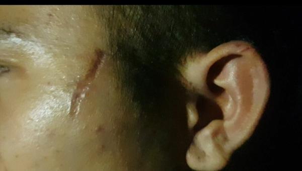 Chuyện đau lòng từ vết sẹo chi chít trên người cậu bé làm thuê