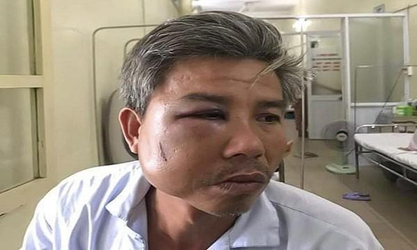 Anh Toàn sau khi bị đánh đã phải nhập viện để phẫu thuật do gãy xương hàm