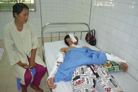 Đà Nẵng: Nam sinh bị dụ mua điện thoại rồi tạt axit