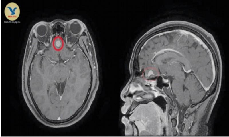 Cảnh giác phát hiện u màng não từ biểu hiện đau đầu thường xuyên
