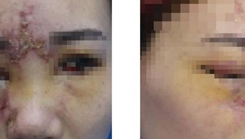 Tiêm filler ở mũi, cô gái trẻ mất thị lực