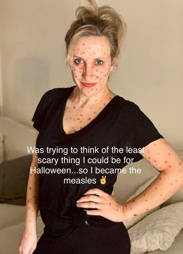 Chơi trội với màn hóa trang Halloween thành bệnh nhân sởi, người phụ nữ bị