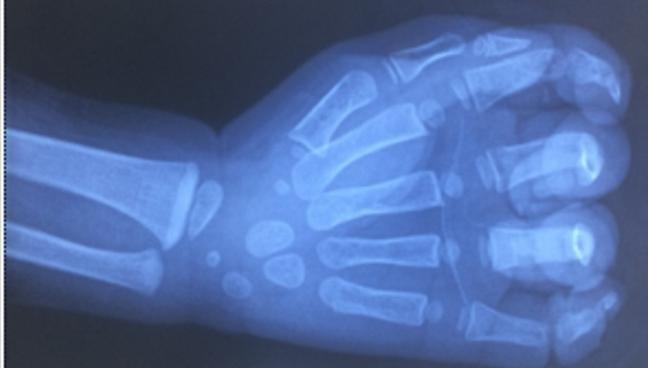 Bé trai 23 tháng tuổi bị dập nát bàn tay vì dây cu-roa máy rửa xe