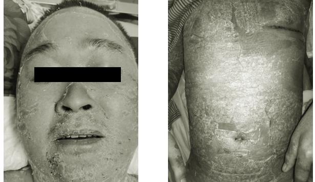 Bong tróc toàn thân do đắp thuốc nam chữa vảy nến