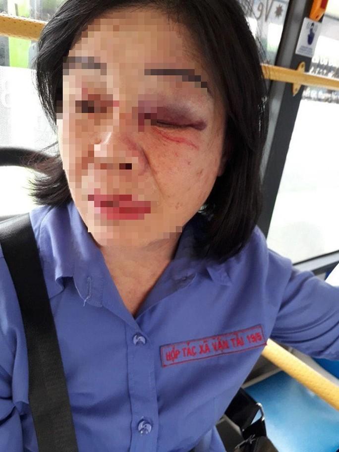 TP HCM: Nữ tiếp viên xe buýt bị hành khách đấm bầm mắt - Ảnh 1.
