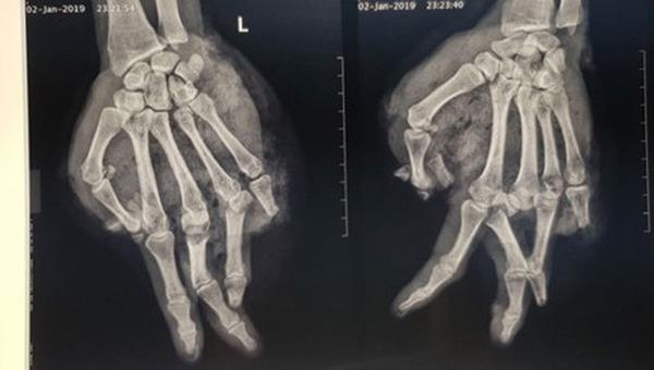 Hình ảnh phim chụp X-quang của một nạn nhân bị nát tay do bình ga mini phát nổ.