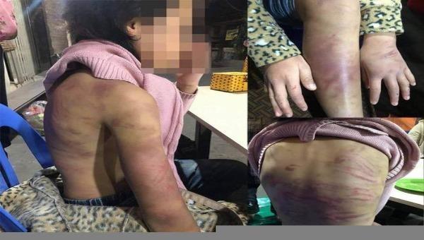 Hội Phụ nữ đề nghị xử lý nghiêm đối tượng bạo hành và xâm hại bé gái 12 tuổi