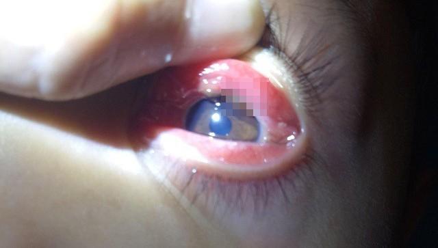 Mắt bé trai 8 tuổi bị con vắt chui vào