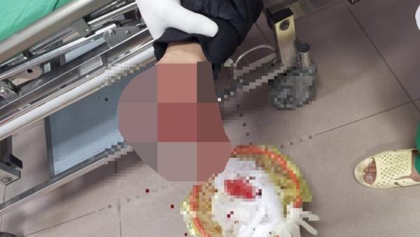 Hai anh em bị nát tay, rách mặt vì nghịch pháo