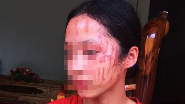 Bảo vệ em gái, nữ sinh lớp 8 bị bạn xô xát, cào đỏ mặt
