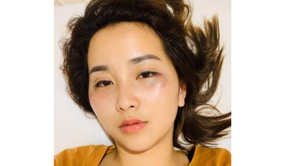 Gương mặt nạn nhân với nhiều vết thâm tím do bị hành hung.