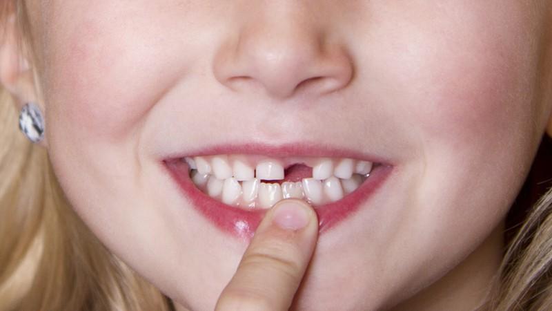 """Khi mới mọc, răng của nhiều trẻ không được """"trât tự"""" như mong muốn"""