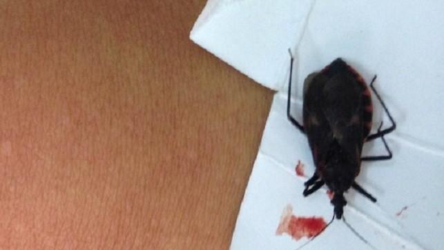 Con bọ xít hút máu được bệnh nhân đem theo đến bệnh viện. Ảnh: Bác sĩ cung cấp