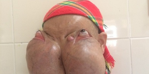 Bệnh nhân Lý Mùi Xiên có khối u khổng lồ đang được chăm sóc tại BV K Trung ương