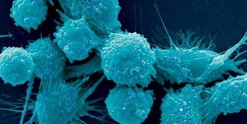 """Phát hiện """"công tắc"""" giúp ung thư di căn"""