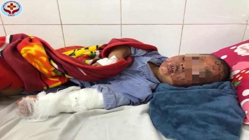 Hai bé trai bị bỏng nặng do nổ pháo tự chế