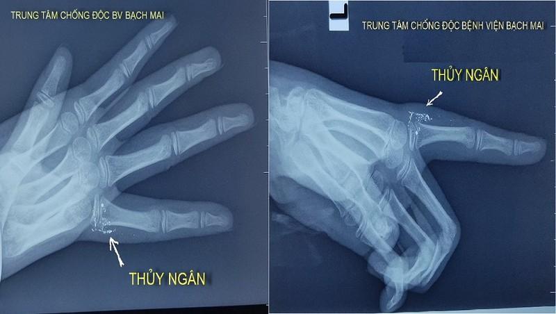 Hình ảnh chụp x-quang vết thương ở ngón tay của cháu bé N.N.Y. Ảnh: Mai thanh