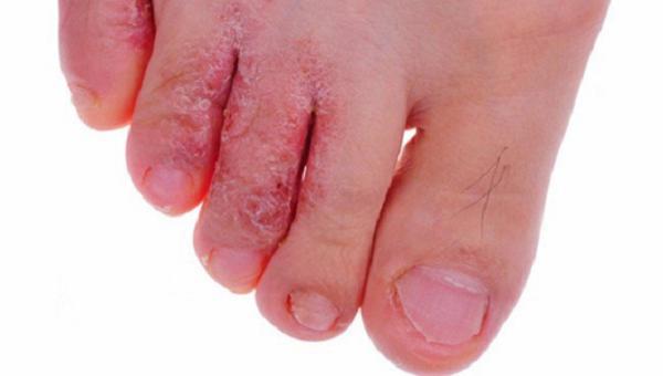 Các bệnh nấm trên da rất dễ sinh sôi và phát triển trong thời tiết nồm ẩm. Ảnh: minh họa.