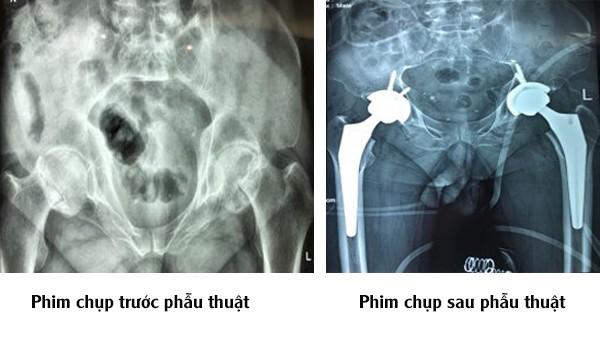 Phim chụp trước và sau phẫu thuật của bệnh nhân. Ảnh: BVCC