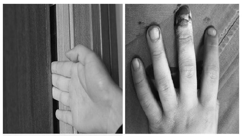 Một bé trai 6 tuổi đã bị tổn thương ngón tay vì kẹp ngón tay vào cánh cửa gỗ trong lúc chơi đùa. Ảnh: Bác sĩ cung cấp