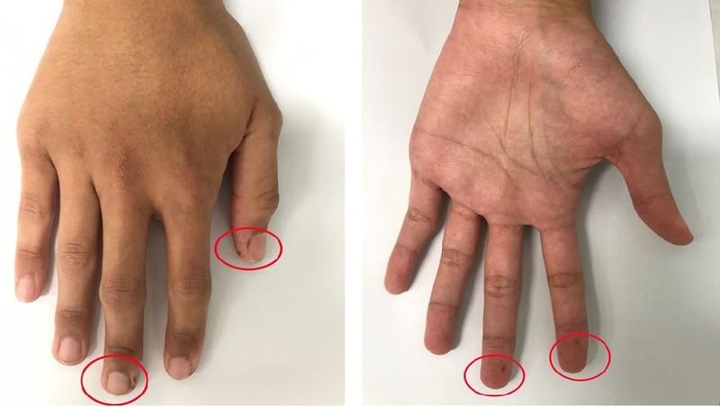 Các đám sắc tố ở tay bệnh nhân trước khi phẫu thuật (Ảnh: BVCC)