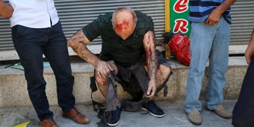 Đánh bom ở Thổ Nhĩ Kỳ, 30 người chết, 100 người bị thương