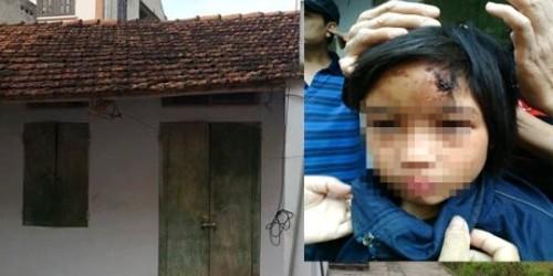 Căn nhà và bé gái có nhiều vết thương trên người bị nhốt trong chùa.