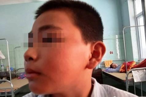 Khuôn mặt em N. bị sưng tấy, tím đỏ nhiều nơi do phải chịu 231 cái tát.