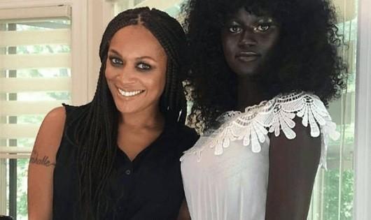 Cô người mẫu gây 'sốt' với làn da đen 'có một không hai'