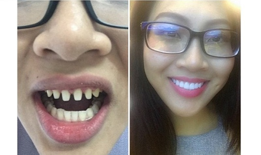 Ồn ào chuyện Đại diện Việt ở Hoa hậu Thế giới bị tố thẩm mỹ
