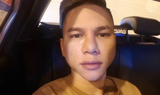 """Gương mặt biến dạng sau phẫu thuật, Hoàng Tôn """"cầu cứu"""" cộng đồng"""