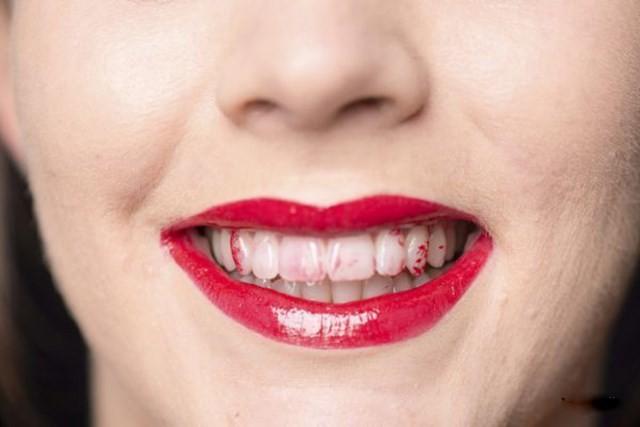 Kết quả hình ảnh cho giải quyết son dính răng