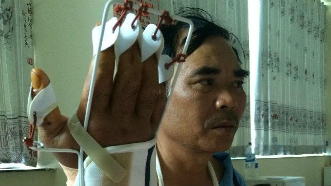 Bàn tay phải của anh Thái bị chém phải băng bó