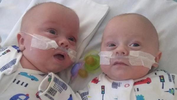 Cặp sinh đôi nhỏ nhất thế giới chào đời