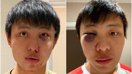 Du học sinh Anh tìm nhân chứng sau khi bị tấn công liên quan đến virus corona