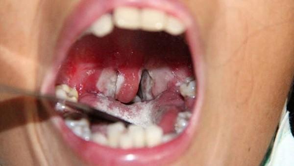 5 biện pháp cần thực hiện để phòng bệnh bạch hầu